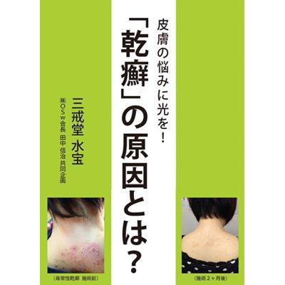 画像1: 皮膚の悩みに光を! 「乾癬」の原因とは?